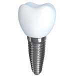 dental-implant-houston-tx