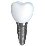 dental-implant-houston-tx