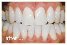 Teeth Whitening - galleria area Houston TX (713) 484-8484
